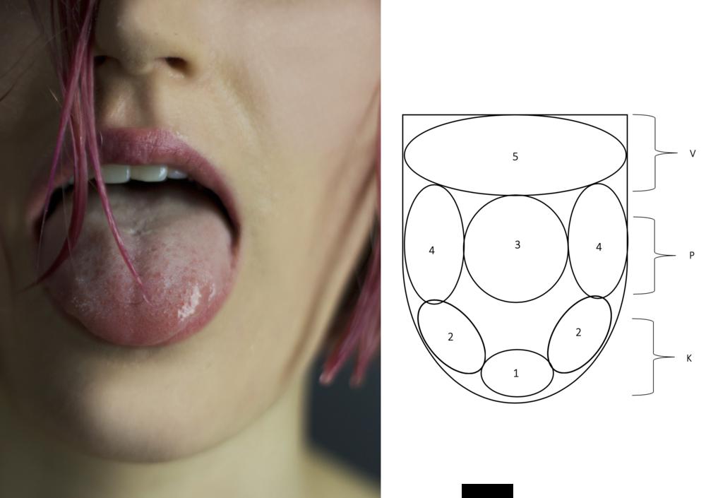 Tongue Exam