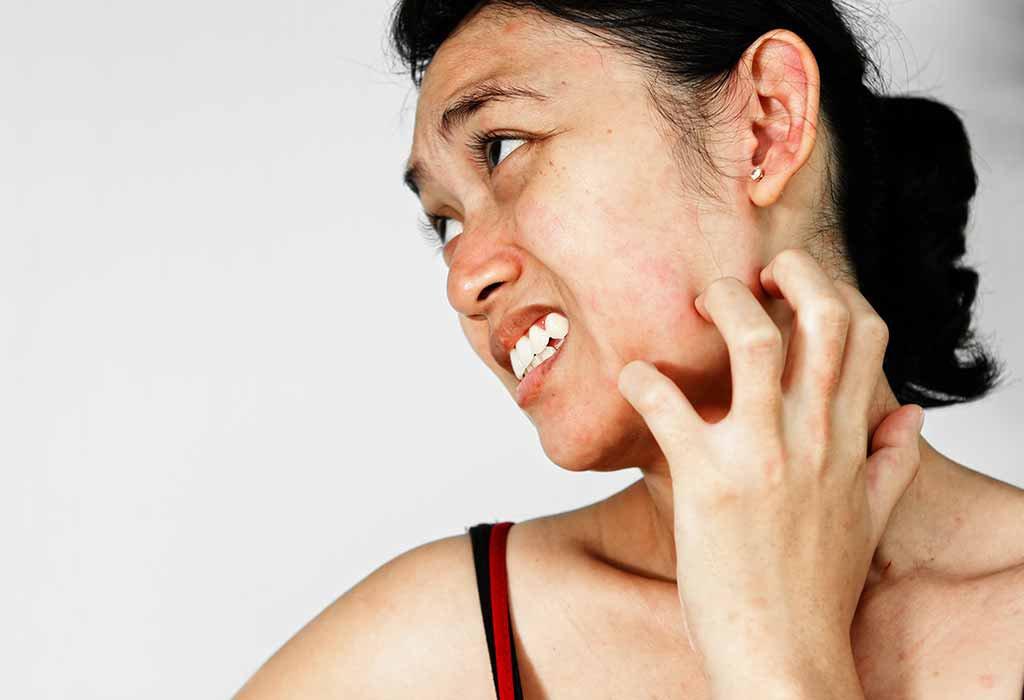 Skin Allergy