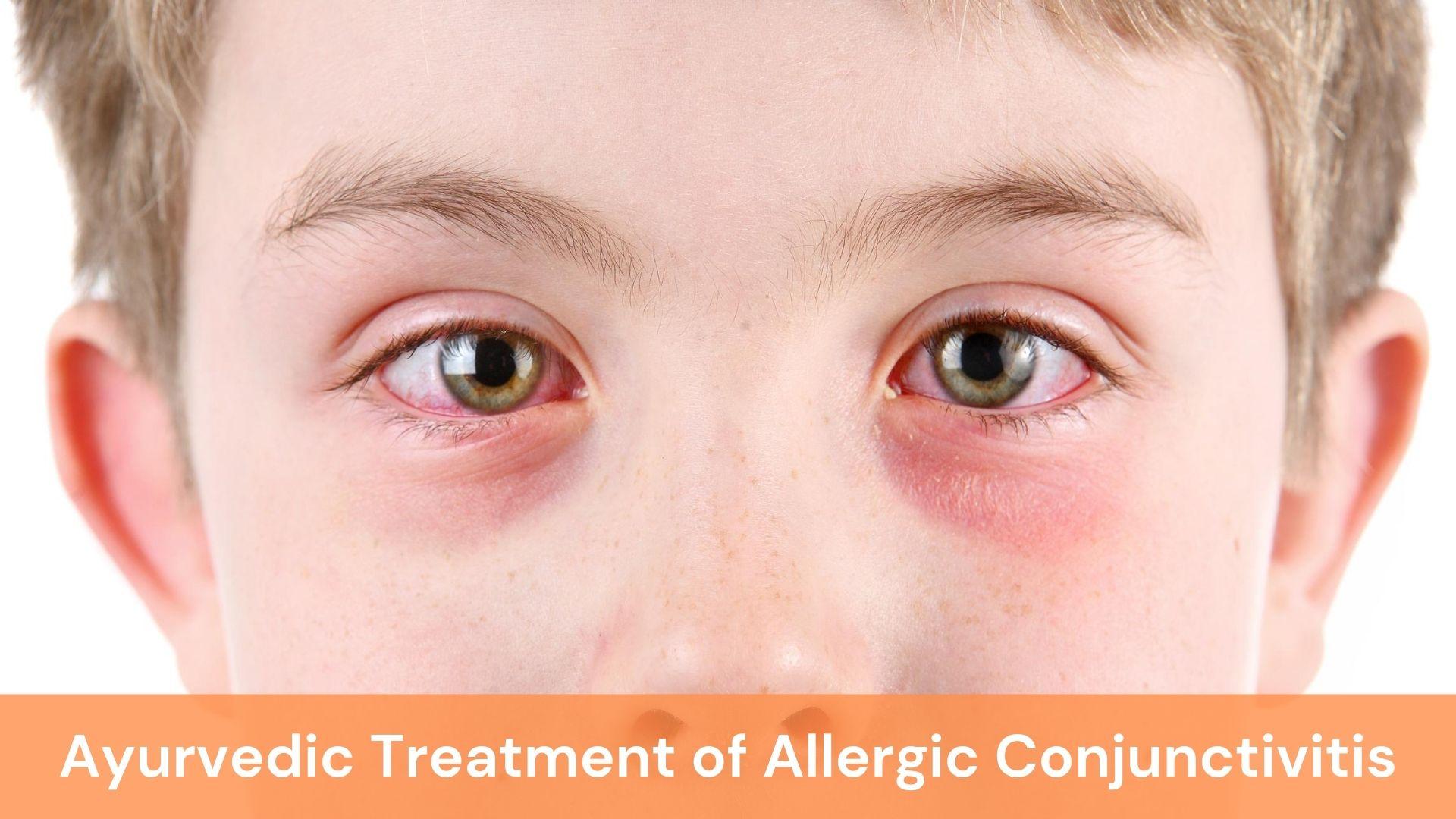 ayurvedic treatment of allergic conjunctivitis