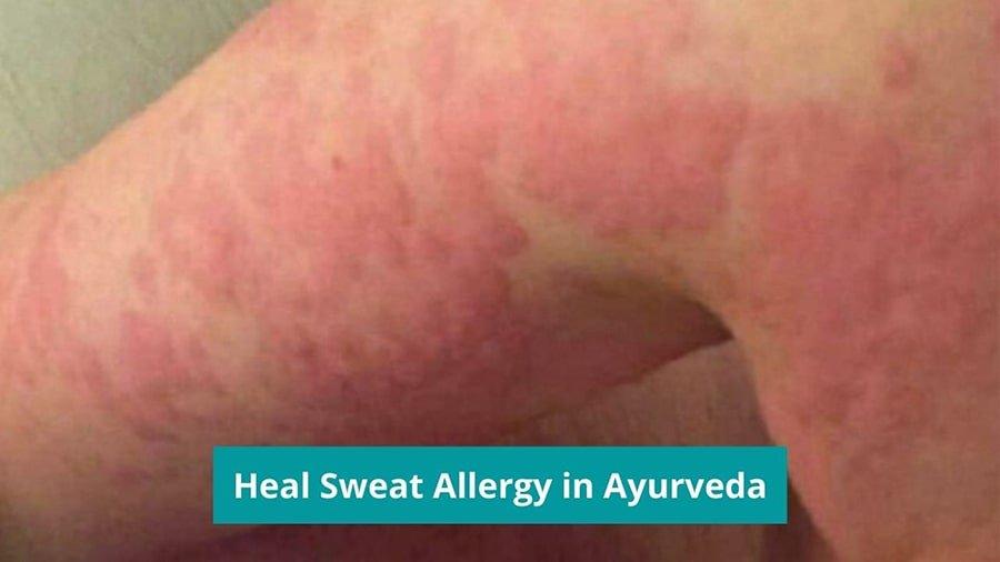 Heal Sweat Allergy in Ayurveda